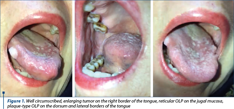 Figure 1. Well circumscribed, enlarging tumor on the right border of the tongue, reticular OLP on the jugal mucosa, plaque-type OLP on the dorsum and lateral borders of the tongue