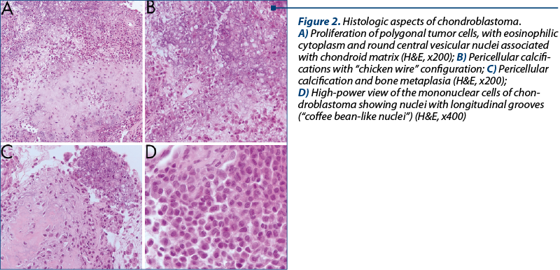 Figure 2. Histologic aspects of chondroblastoma.