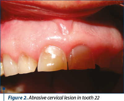 Figure 2. Abrasive cervical lesion in tooth 22