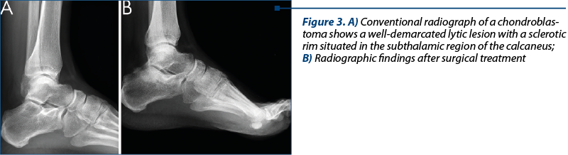 Figure 3. A) Conventional radiograph of a chon­dro­blas­toma shows a well-de­mar­cated lytic le­sion with a sclerotic rim si­tua­ted in the subthalamic re­gion of the calcaneus; B) Ra­dio­gra­phic findings after sur­gi­cal treatment
