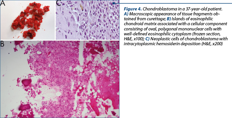 Figure 4. Chondroblastoma in a 37-year-old patient.