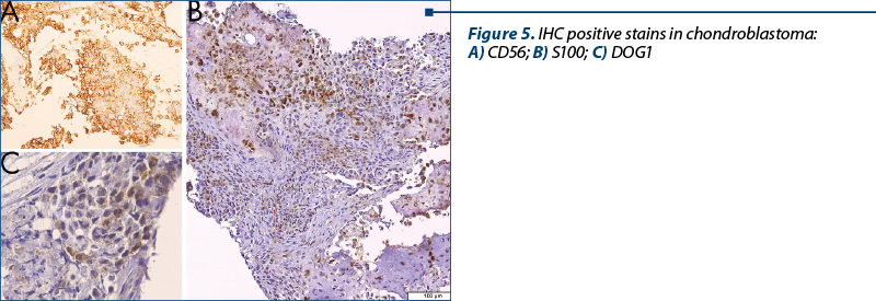 Figure 5. IHC positive stains in chondroblastoma