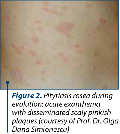 Figure 2. Pityriasis rosea during evolution: acute exanthema with disseminated scaly pinkish plaques (courtesy of Prof. Dr. Olga Dana Simionescu)