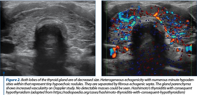 Figure 2. Both lobes of the thyroid gland are of decreased size. Heterogeneous echogenicity with numerous minute hypoden­si­ties within that represent tiny hypoechoic nodules. They are separated by fibrous echogenic septa. The gland parenchyma shows increased vascularity on Doppler study. No detectable masses could be seen. Hashimoto's thyroiditis with consequent hypothyroidism (adapted from https://radiopaedia.org/cases/hashimoto-thyroiditis-with-consequent-hypothyroidism)