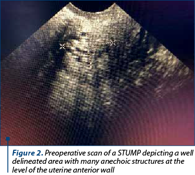 Figure 2. Preoperative scan of a STUMP depicting a well delineated area with many anechoic structures at the level of the uterine anterior wall