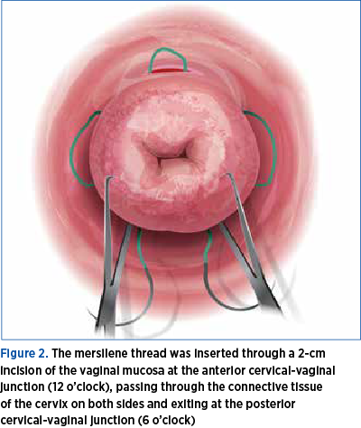 Figure 2. The mersilene thread was inserted through a 2-cm  incision of the vaginal mucosa at the anterior cervical-vaginal junction (12 o'clock), passing through the connective tissue  of the cervix on both sides and exiting at the posterior  cervical-vaginal junction (6 o'clock)