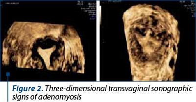 Figure 2. Three-dimensional transvaginal sonographic signs of adenomyosis