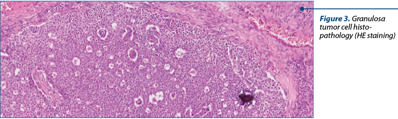 Figure 3. Granulosa tumor cell histo­pathology (HE staining)