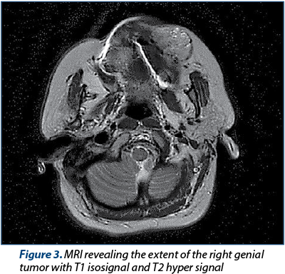 Figure 3. MRI revealing the extent of the right genial tumor with T1 isosignal and T2 hyper signal