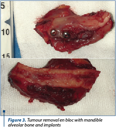 Figure 3. Tumour removal en bloc with mandible alveolar bone and implants