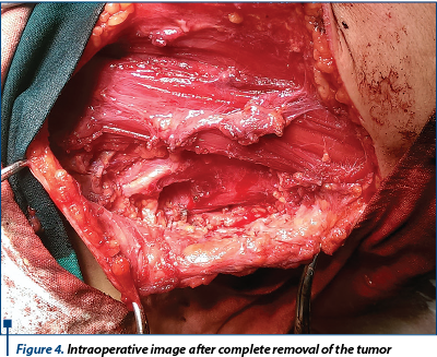 Figure 4. Intraoperative image after complete removal of the tumor
