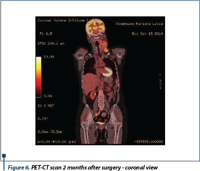 Figure 6. PET-CT scan 2 months after surgery - coronal view
