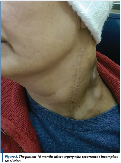Figure 8. The patient 10 months after surgery with recurrence's incomplete resolution